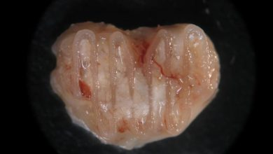 Photo of AMBER Researchers Develop New 3D Bioprinting Technology to Make Alternatives to Bone Grafts