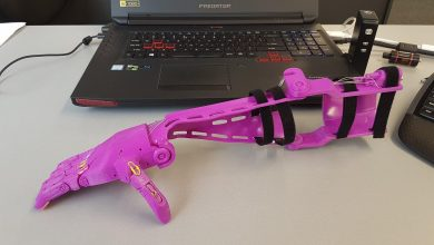 Photo of Paige's New 3D Printed Prosthetic Arm