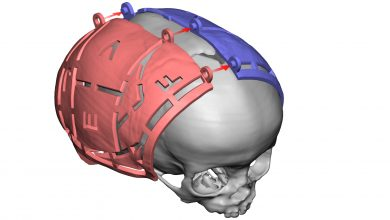 Photo of 3D Systems Expands Virtual Surgical Planning (VSP) Service to Include Cranial Applications