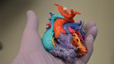 Photo of Surgeons in Nova Scotia Use 3D Printed Heart Model to Rehearse Complex Procedures