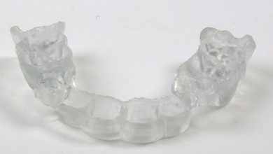 Photo of 3D Printing Patents in the Dental Industry (Infographic)