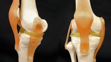 Photo of Duke Researchers Develop Clay Based Double Hydrogel for Knee Reconstruction