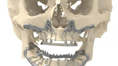 Photo of CADSkills Develop Revolutionary 3D Printed Titanium Jaw Implant