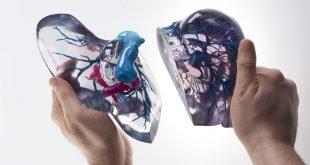 Stratasys and Philips Work to Advance 3D Printed Medical Models