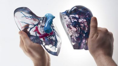 Photo of Stratasys and Philips Work to Advance 3D Printed Medical Models