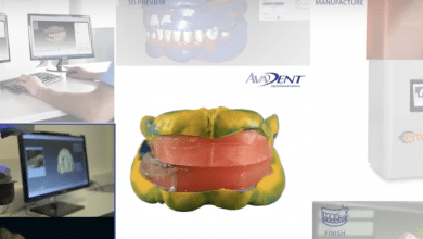 Photo of EnvisionTEC and AvaDent Join Forces on Complete Digital Dentistry Solution | Video