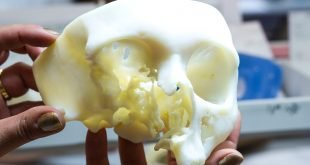 Materialise's 3D Anatomical Model Process First Cleared by FDA