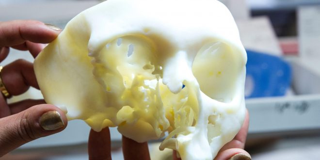 Materialise anatomical model