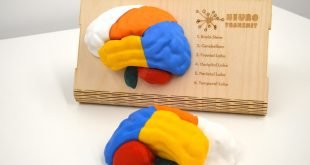 How a 3D printed brain model is teaching UK students about mental health