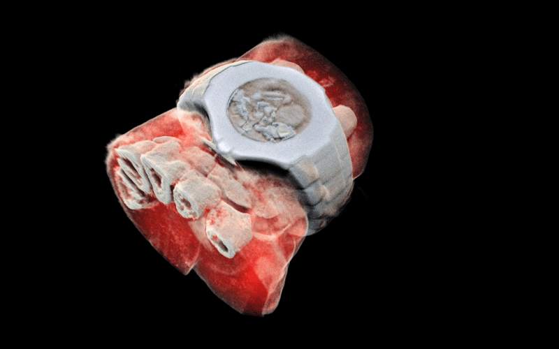 x-ray 3d scan