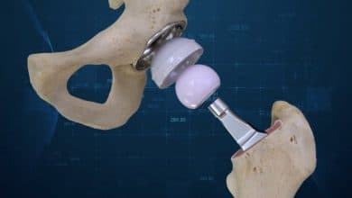 Photo of Total hip replacement surgeries performed using Conformis 3D solution