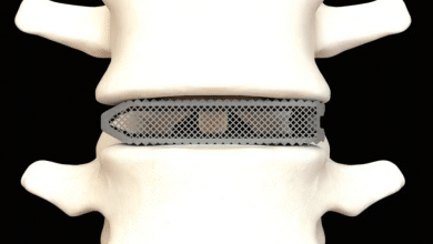 Photo of Osseus Fusion Systems receives FDA clearance for 3D printed Aries titanium spinal implants