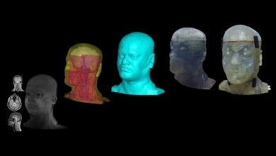 Photo of How a 3D printed phantom head could impact medical imaging