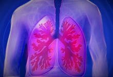 bioprinted lungs
