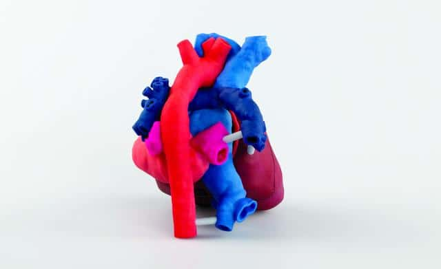 3D Systems OpHeart