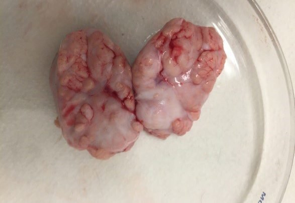 Celprogen bioprinted brain