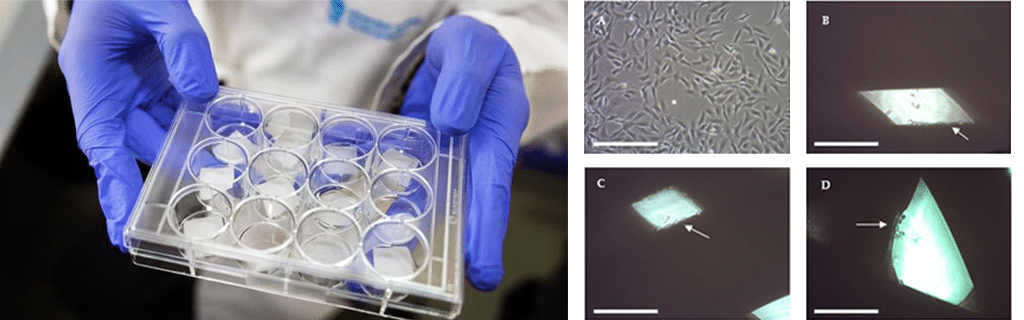 3D printed scaffold breast cancer