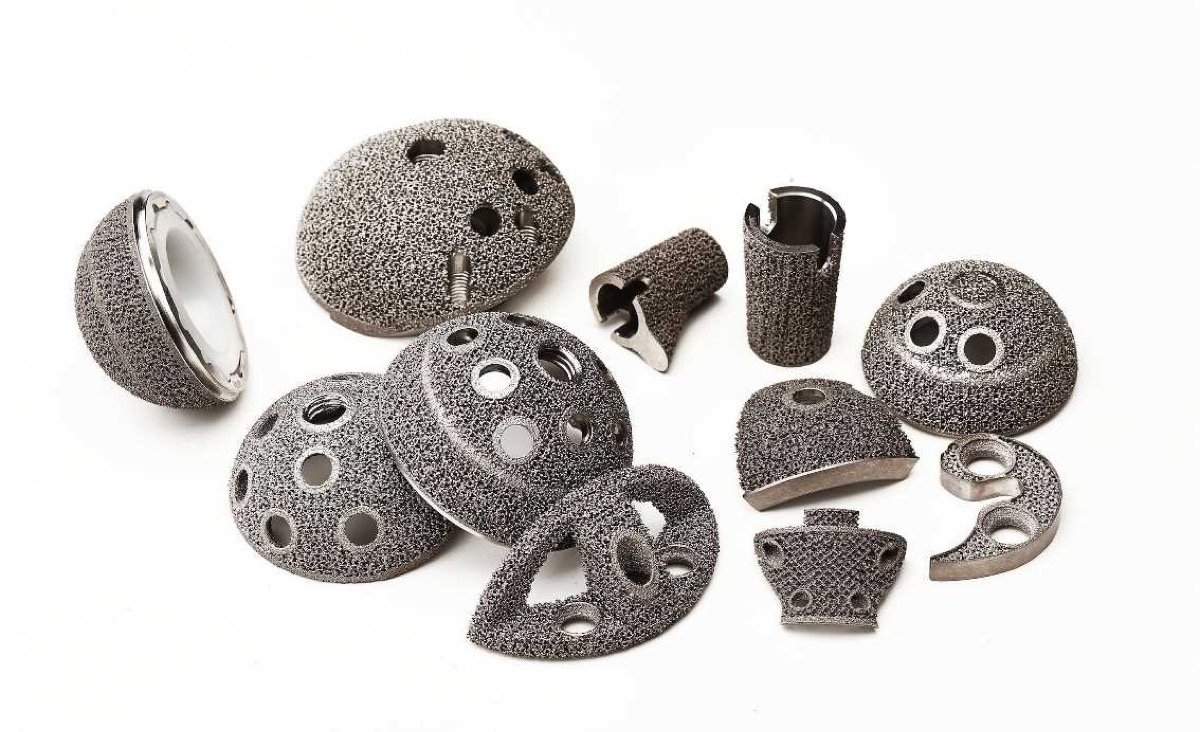 3D printed orthopedic implants