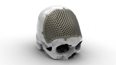 Photo of How medical device companies use AM for production today part 8: MT Ortho additive manufacturing