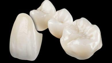 Photo of Lithoz forms alliance for 3D printed ceramic dental implants