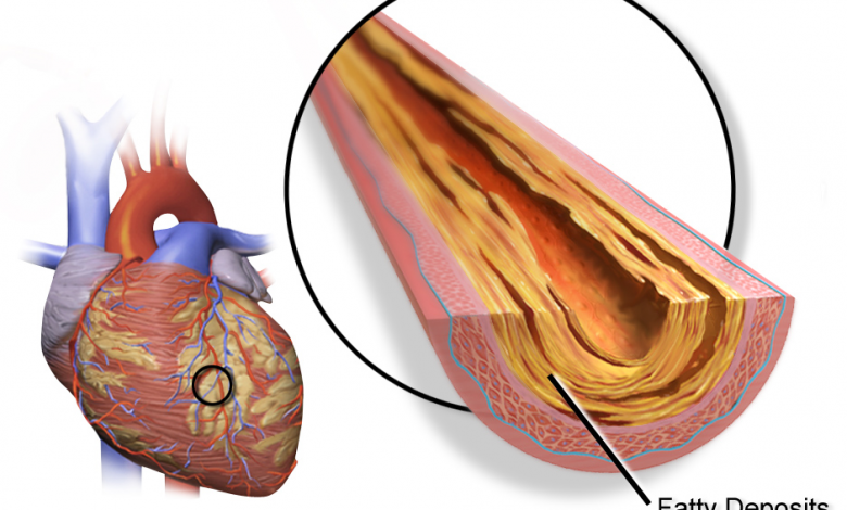 Photo of Researchers develop 3D printed artery with integrated monitoring