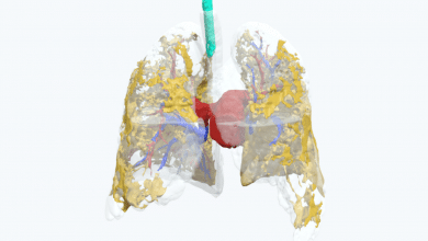 Photo of Belfast doctors study COVID-19 effects with 3D printed lung model