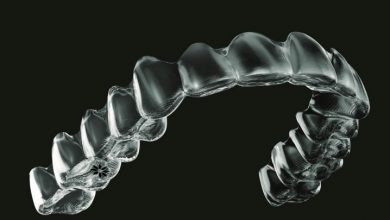3D printed orthodontic aligners