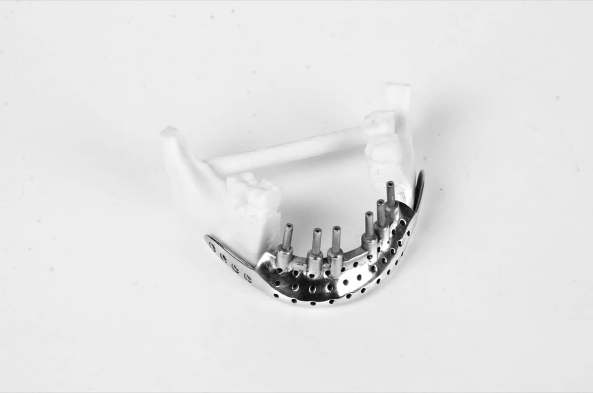 3D Incredible has produced over 600 3D printed orthopaedic implants