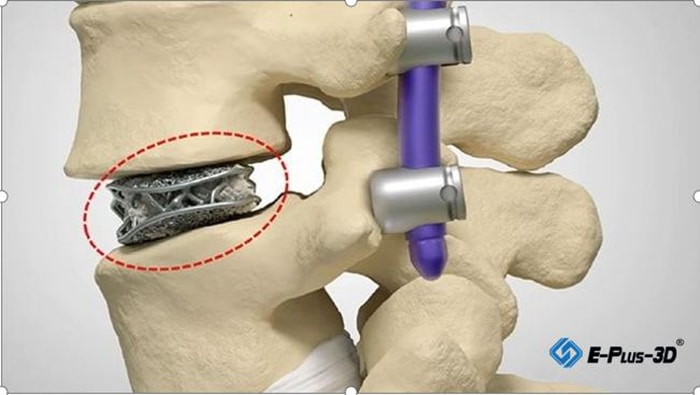 MANTIZ acquires EP-M260 from Eplus3D to 3D print PANTHER spinal implants