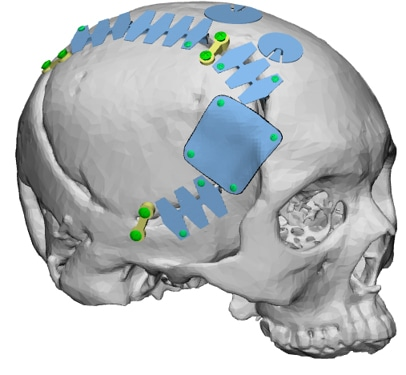 T&R Biofab introduces new 3D printed PCL Craniofacial-bone implants